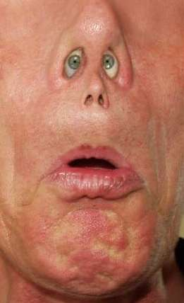 Funny Pictures of Eyes in Guys Nostrils